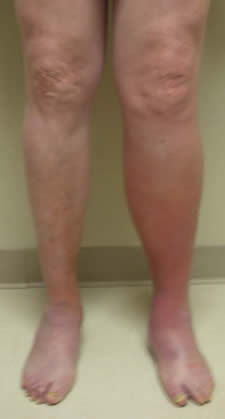 how to tell if leg pain is blood clot