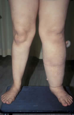 Venous Leg Swelling